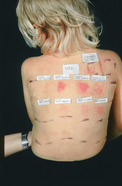 Skin patch testing for food allergies
